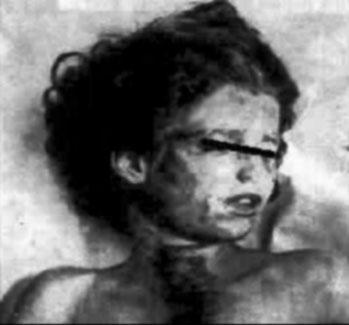 Mary Phagan autopsy photo shows the gouge in her neck from the cord that was wrapped around her neck to strangle her.